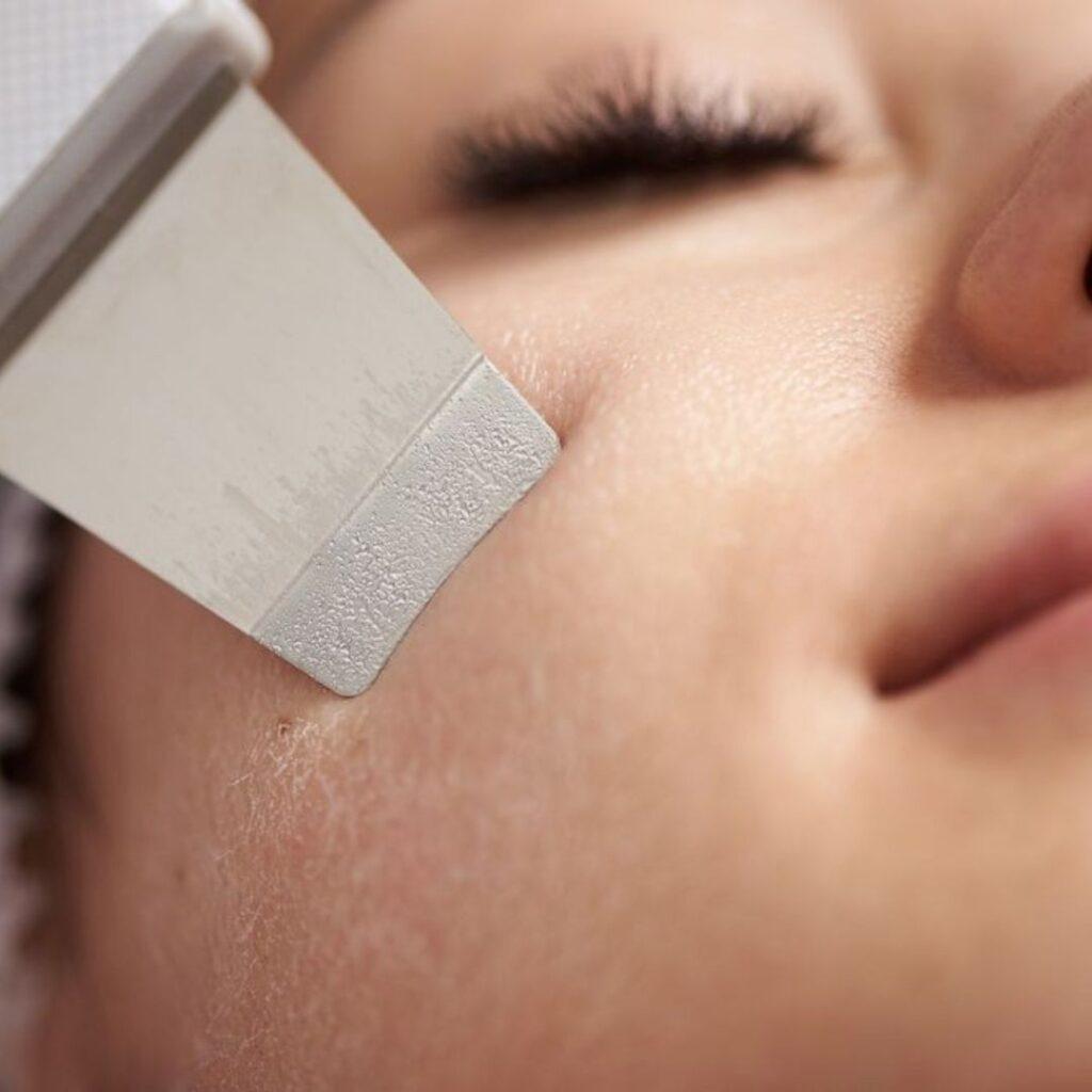 Фото процедуры ультразвуковой чистки