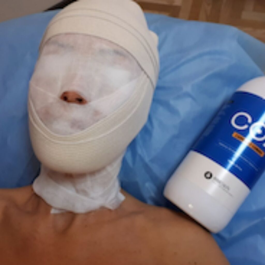 Фото процедуры карбокситерапии