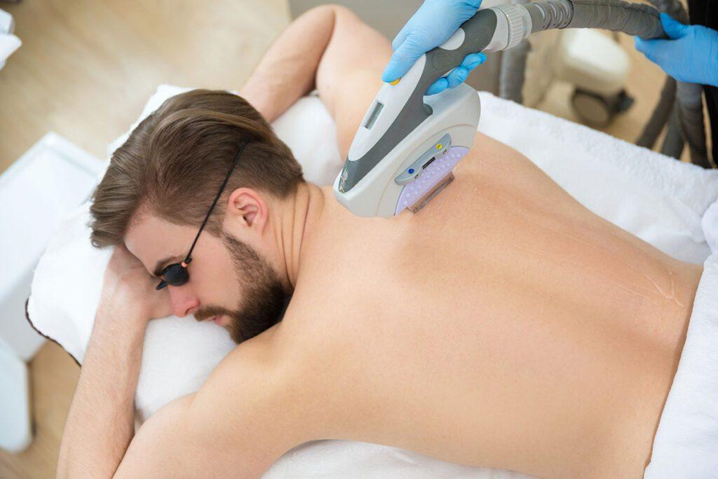 Удаление волос с тела лазером