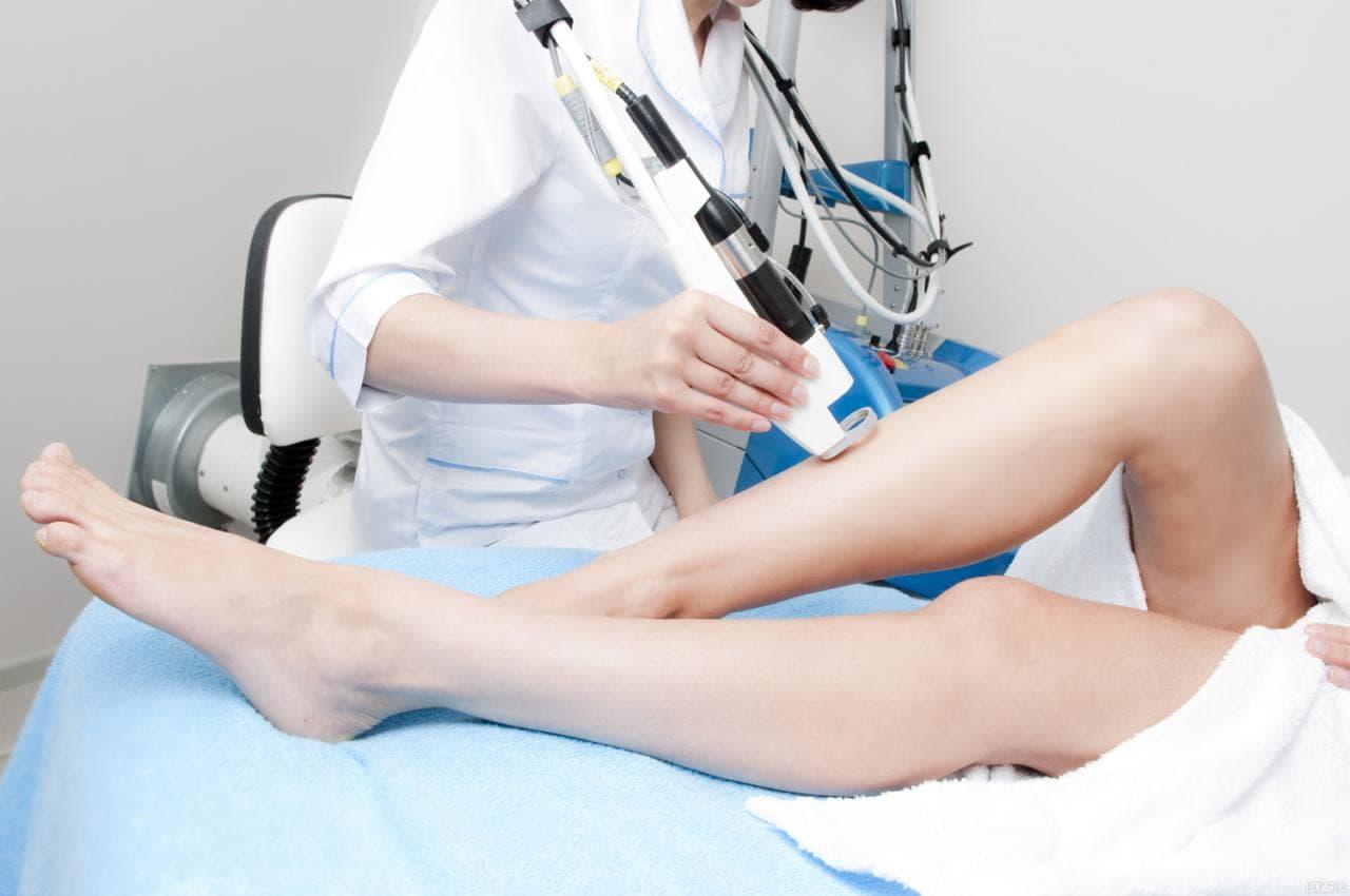 Эпиляция ног с помощью лазера