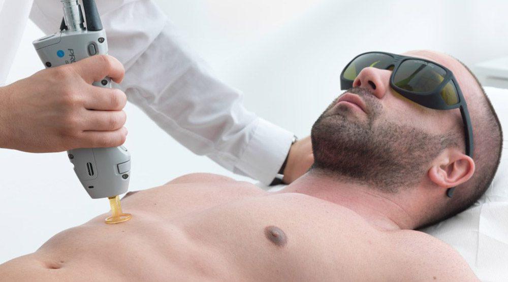 Лазерная эпиляция лица мужчин в Киеве недорого